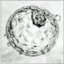 Human_blastocyst